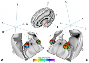 Darstellung des medialen Kniehöckers im Gehirn von menschlichen Testpersonen.  Copyright: Mihai et al. 2019, CC-BY license